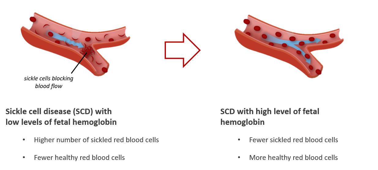 Sickle cells graphic for website with text